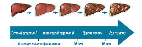 Гепатит B грозит самыми серьёзными последствиями