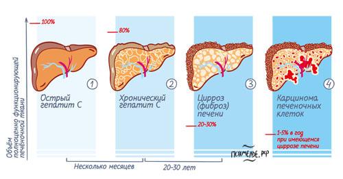 Как прогрессирует гепатит C, если его не лечить. Инфографика